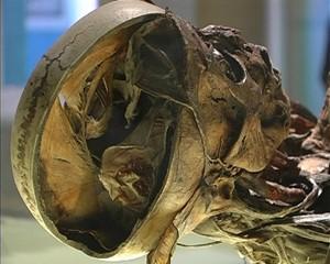Geheimnisse der Anatomie in Gotha