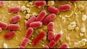Die EHEC/HUS Infektion
